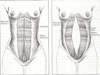 La diástasis de los rectos abdominales